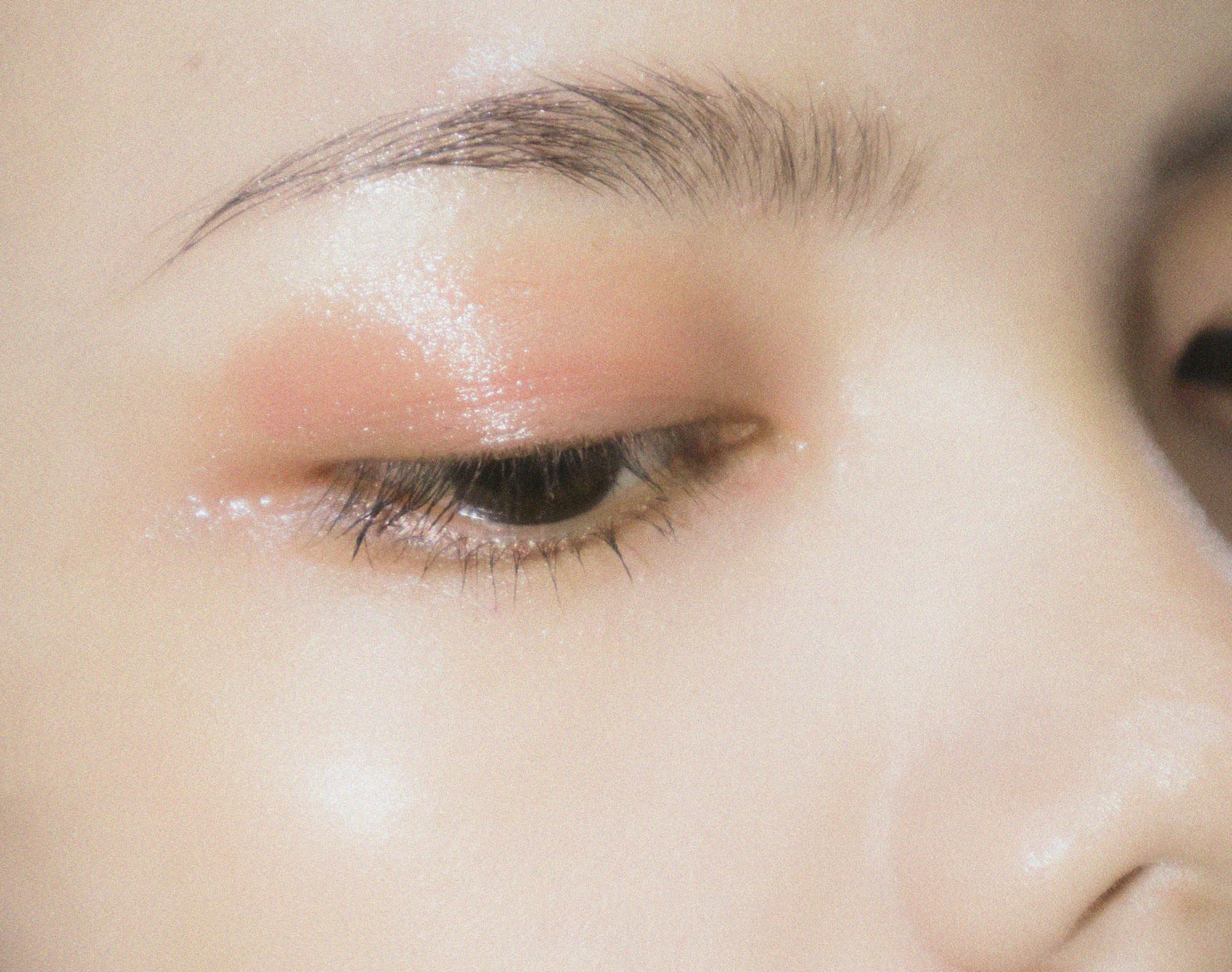 Recovery after Blepharoplasty